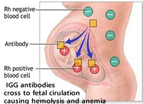Fetal Anemia