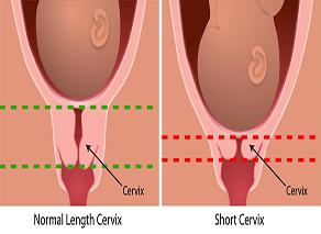 Short Cervix