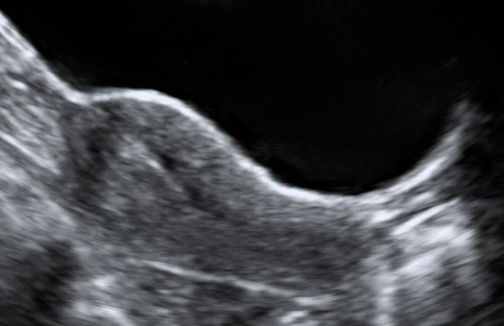 transbdominal scan uterus